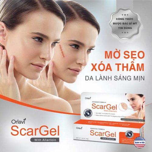 [Review] Đánh giá kem trị sẹo rỗ Orlavi Scargel