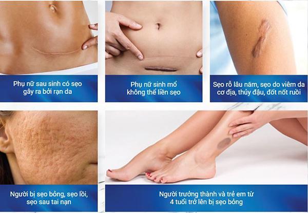 Các vết sẹo hình thành như thế nào