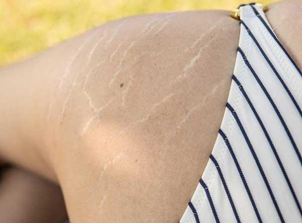 Vết rạn da