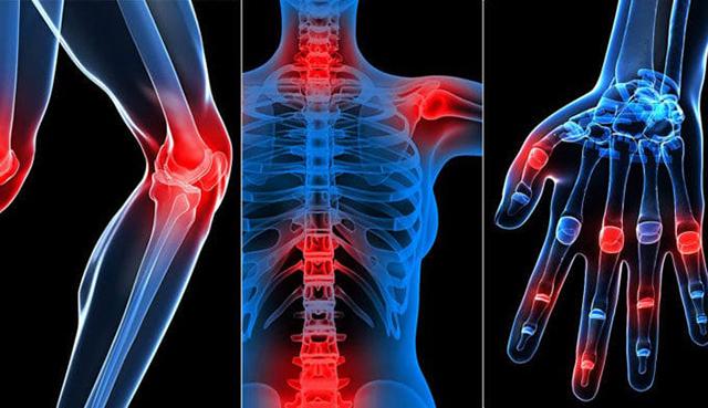 Điều trị đau nhức xương với Glucosamine Orihiro