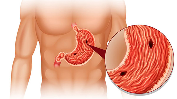 Tìm hiểu về viêm loét dạ dày