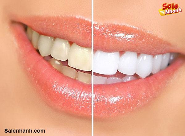 Ưu điểm bút tẩy răng clora