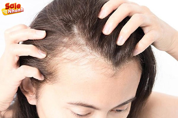 Rụng tóc hói đầu